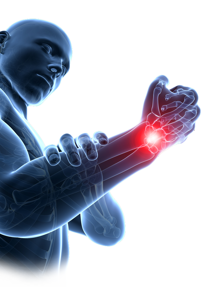 Cure repetitive strain injuries