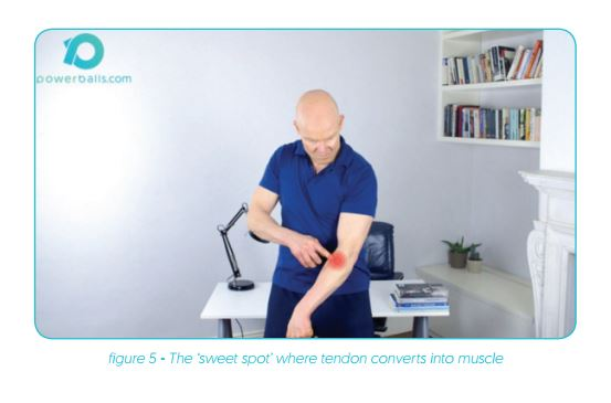 Tennis Elbow Treatment Sweet Spot