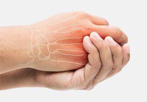 broken hand, fractured hand