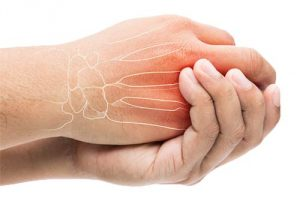 hand pain, finger pain, finger pain rehab