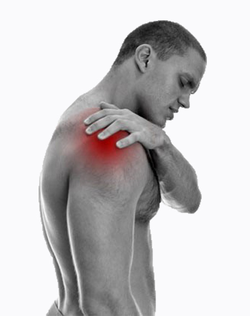 shoulder rehabilitation, shoulder fracture, broken shoulder